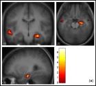 fMRI2